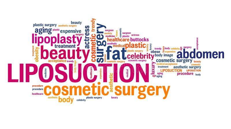 liposuction royalty-vrije illustratie