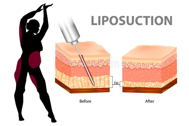 Liposuction eller lipo royaltyfri illustrationer