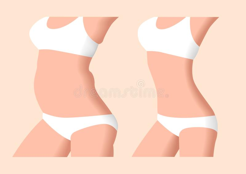 Liposuction Before And After , Fat , Diet , Surgery Stock Vector