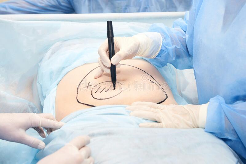 Liposuction operation. Doctor hands near belly. Surgery room. Belly surgery. Doctor mark liposuction area at tummy. Drawing at skin. Anti cellulite equipment stock photos