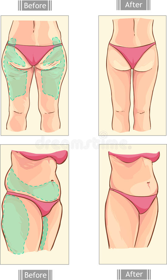 Liposuction royalty free illustration