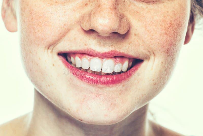 Lippen en portret van de de sproet het gelukkige jonge mooie studio van de neusvrouw met gezonde huid stock foto