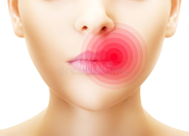 Lips affected by herpes. stock photos