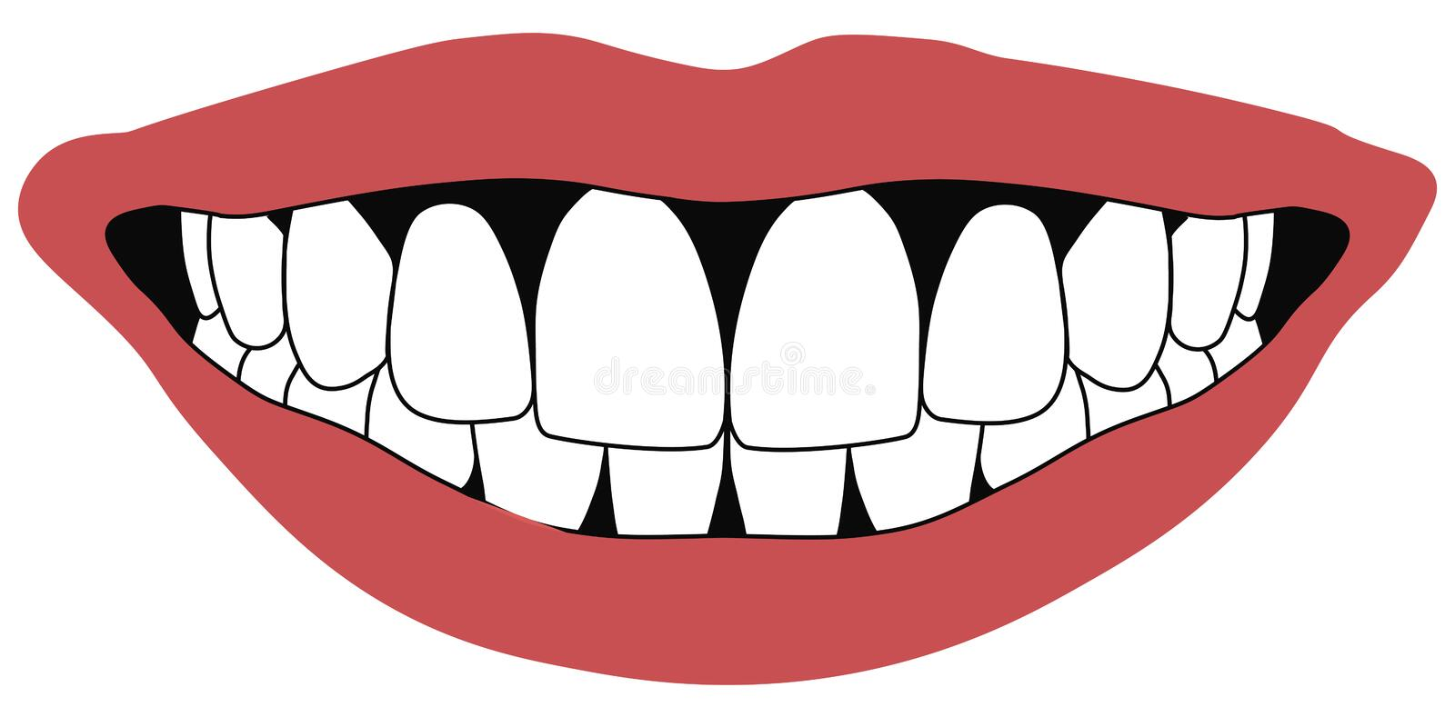 Lips front teeth open mouth white front teeth dentistry concept royalty free illustration