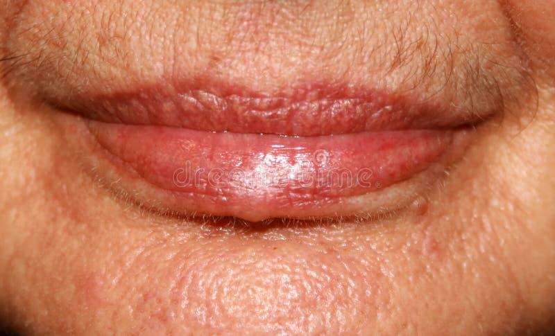 Lips. Silicone. Nasolabial folds. Wrinkles around the mouth stock image