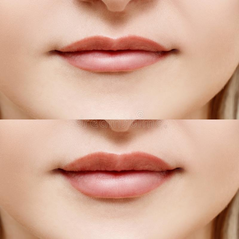 Lips of woman before and after augmentation. royalty free stock images
