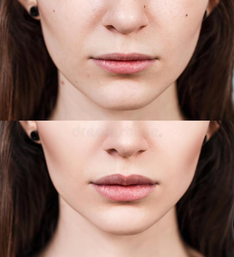 Lips of young woman before and after augmentation stock image