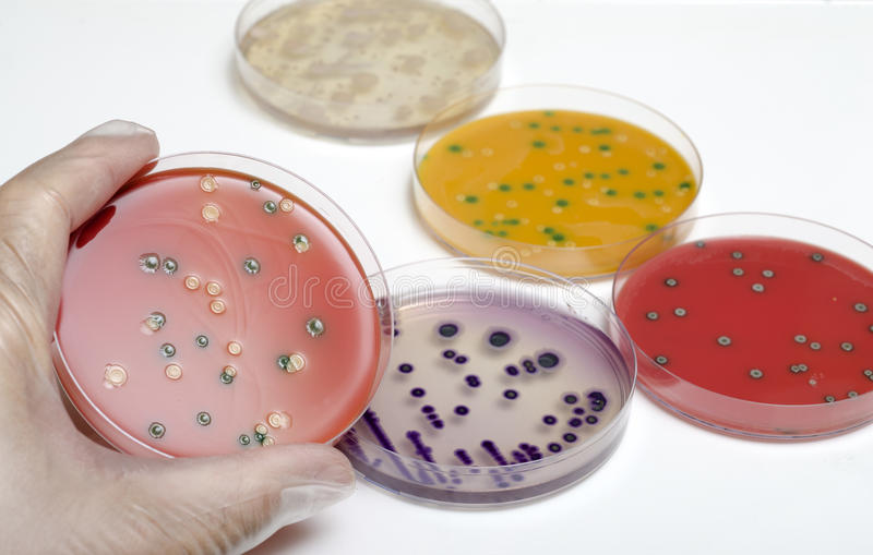 Download Listeria stock image. Image of human, laboratory, bacterium - 27587707