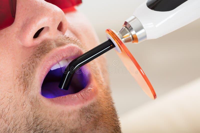 Lit-zahnmedizinisches kurierendes UV-Licht in Mann ` s Mund stockfoto