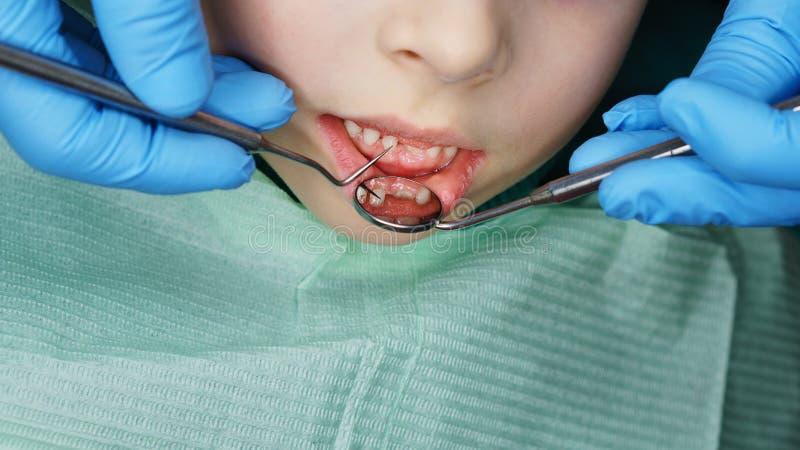 Liten flicka i tand- klinik royaltyfria foton