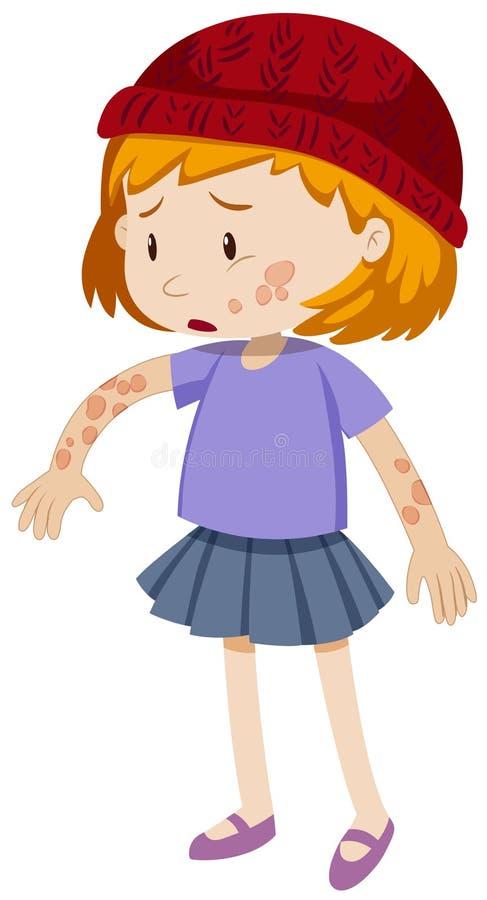 Liten flicka med revorm på hennes kropp vektor illustrationer