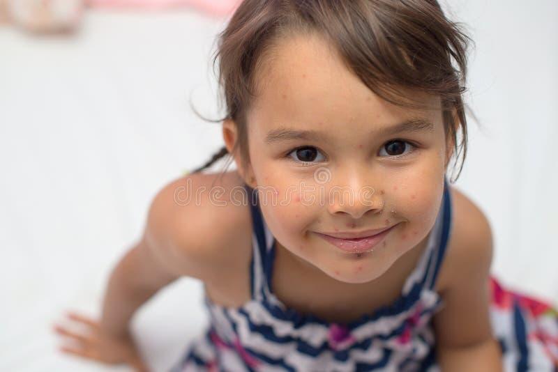 Liten flicka med varicellaen, vattkoppor, liten pox royaltyfria bilder