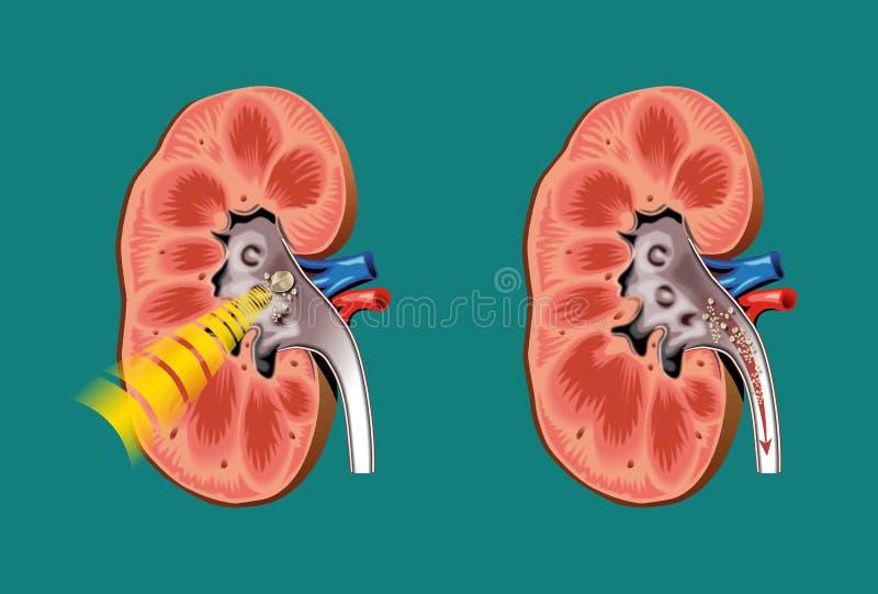 lithotripsy πέτρες νεφρών ελεύθερη απεικόνιση δικαιώματος