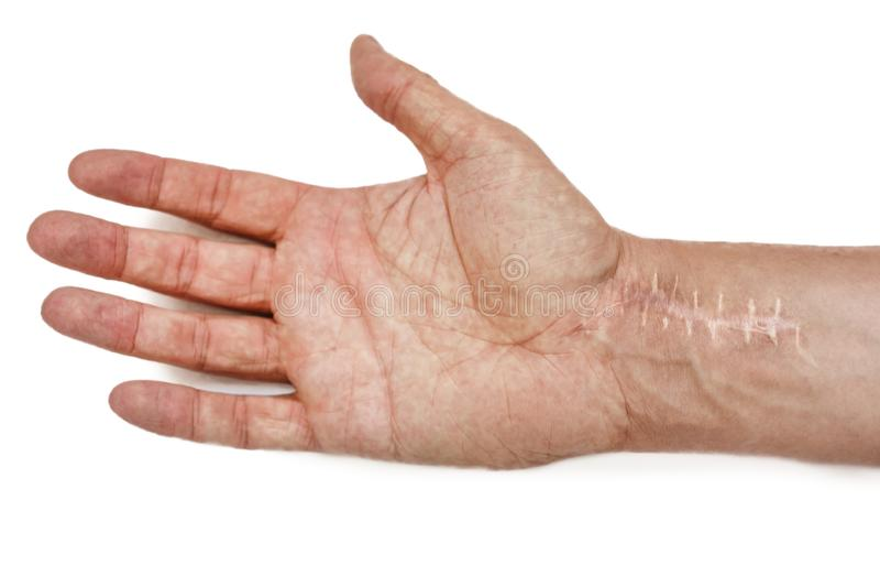 Litteken met steken op de pols na chirurgie Breuk van de beenderen van de handen op witte achtergrond worden geïsoleerd die stock afbeeldingen