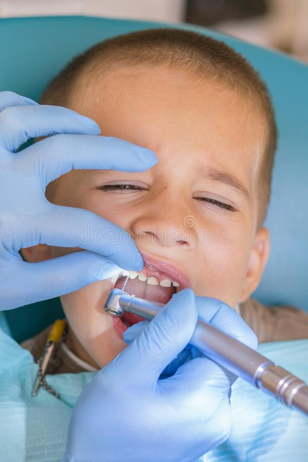 A little boy at a dentist`s reception in a dental clinic. Children`s dentistry, Pediatric Dentistry. A female stock photography