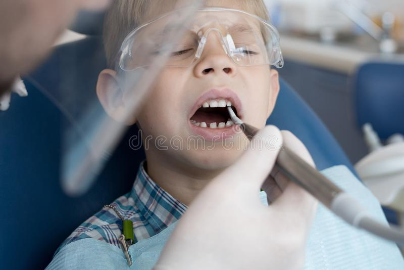 Little Boy no tratamento dental foto de stock