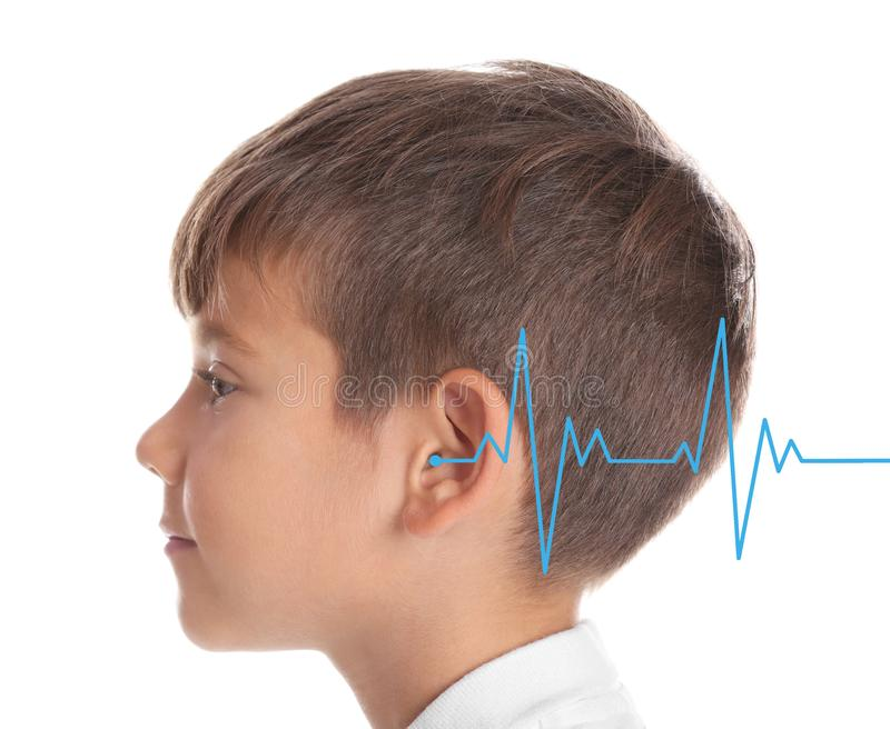 Little boy with symptom of hearing loss. On white background. Medical test stock image
