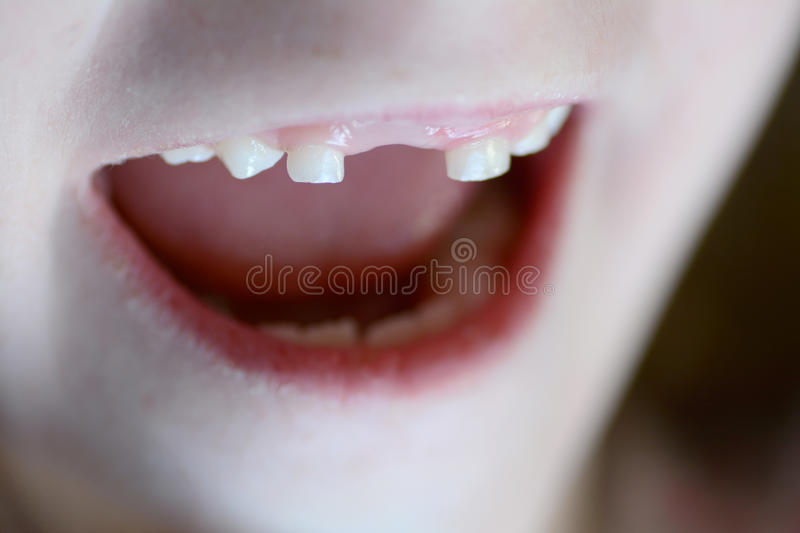 Little Child Smiling Missing Front Tooth. Little child smiling portrait missing front tooth royalty free stock photography