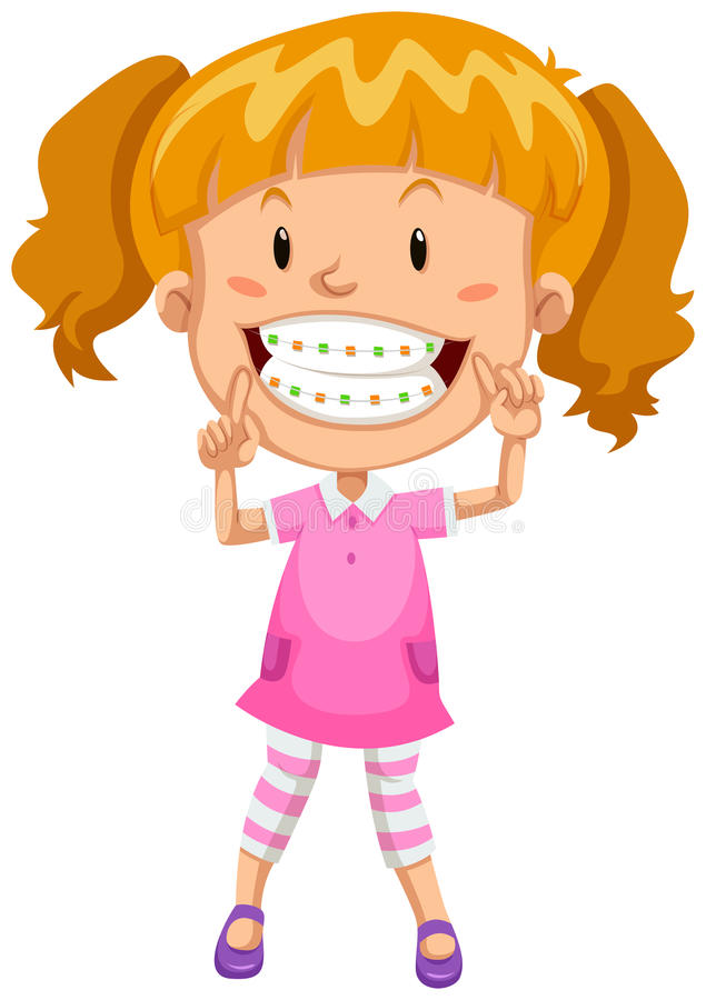 Little girl with braces royalty free illustration