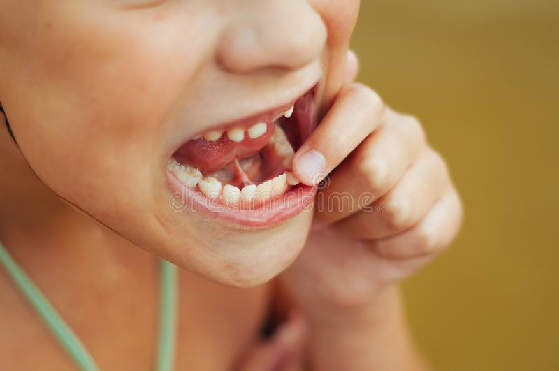 Little girl loses milk tooth in summer stock photo
