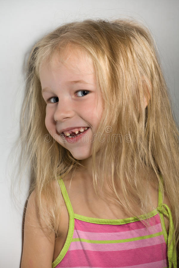 Little girl without one front tooth. Funny smiling little girl without one front tooth stock photo