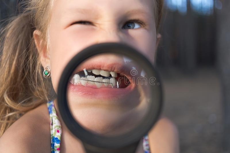 A little girl put a magnifying glass to her mouth to show an orthodontic appliance, crooked teeth and a wobbly tooth stock photo