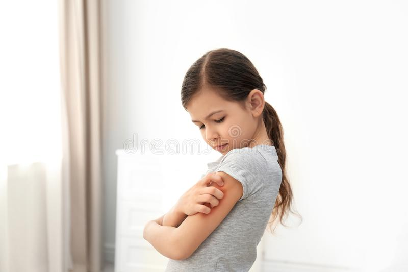 Little girl scratching arm. Allergy symptoms. Little girl scratching arm indoors. Allergy symptoms stock photo