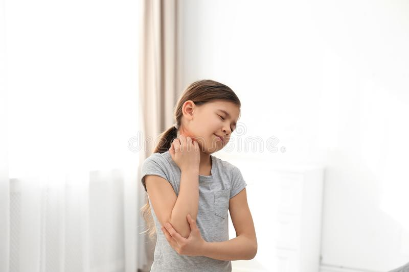 Little girl scratching neck. Allergy symptoms. Little girl scratching neck indoors. Allergy symptoms royalty free stock photos