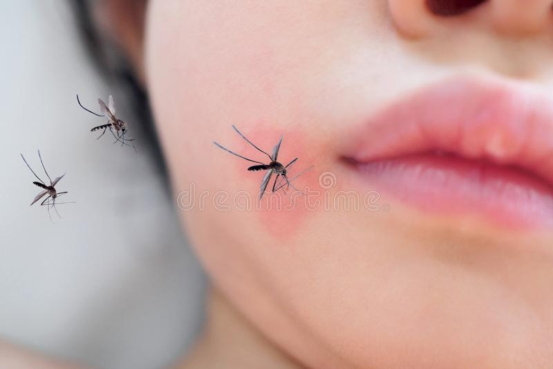 Little girl skin rash and allergy with red spot cause by mosquito bite. Little asian girl skin rash and allergy with red spot cause by mosquito bite royalty free stock images