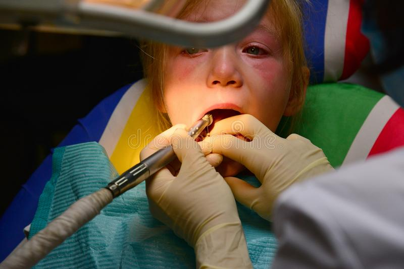 A little girl treats a tooth at a dentist, the doctor drills and cleans the tooth from the caries by polishing. stock photos