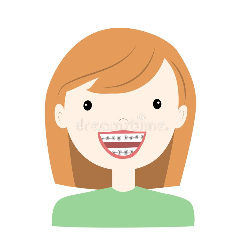 Little girl wearing braces  tooth system. Vector illustration stock illustration