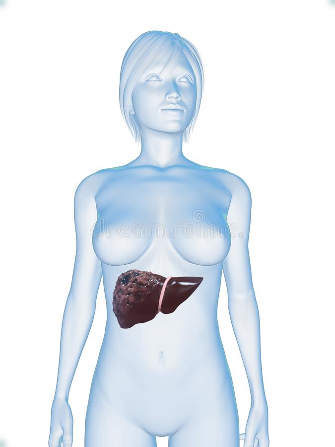 Liver cancer stock photos