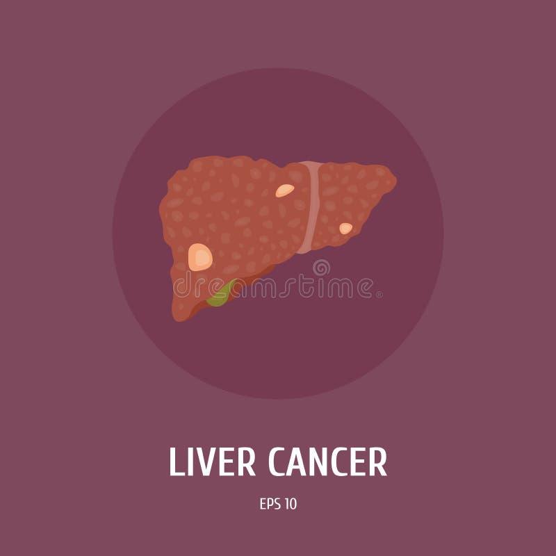 Liver cancer. Internal organs of man. Surgery. Vector Flat Illustration. Liver cancer. Internal organs of man. Medicine. Anatomy. Surgery. Vector Flat stock illustration
