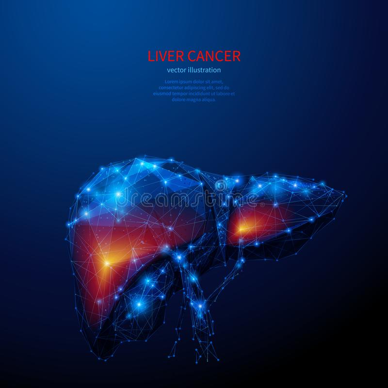 Liver cancer low poly blue. Liver cancer. Male organ. Low poly wireframe medical blue background or concept. Digital vector illustration. Medicine and health royalty free illustration