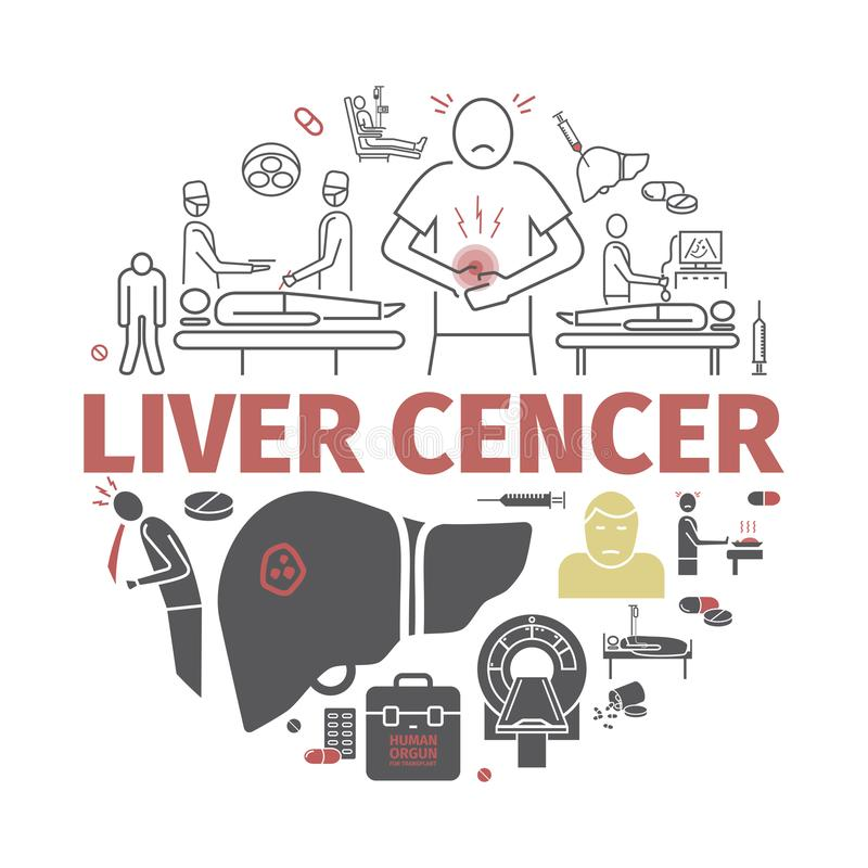 Liver Cencer. Symptoms, Causes, Treatment. Vector signs. royalty free illustration