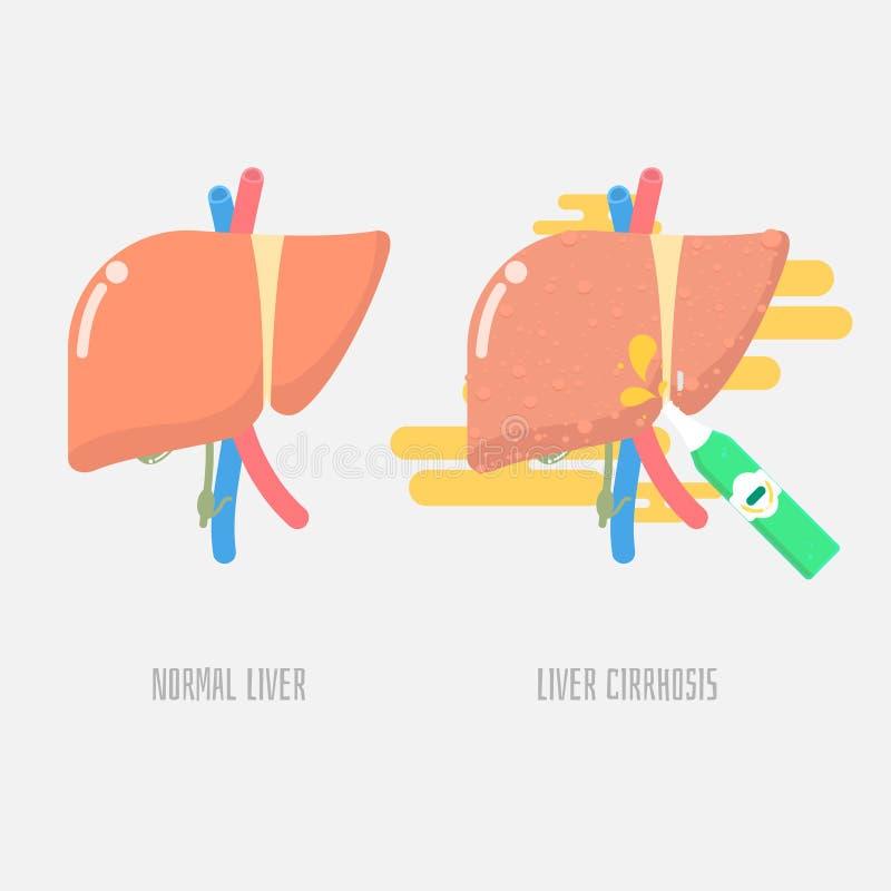Liver cirrhosis with drinking alcohol. Vector illustration cartoon flat design clip art stock illustration