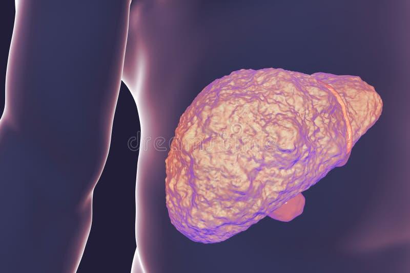 Liver cirrhosis illustration. Liver with cirrhosis inside human body. 3D illustration royalty free illustration