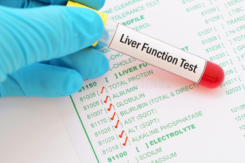 Liver function test. Blood sample with requisition form for liver function test stock image