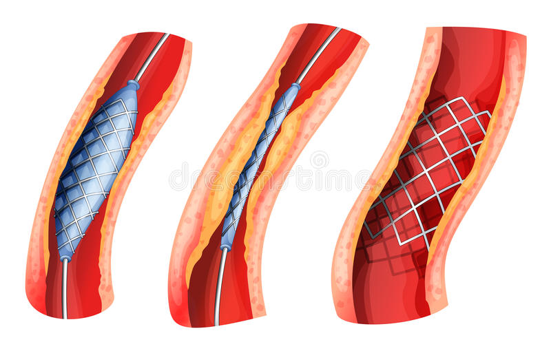 Lo stent usato per aprirsi ha bloccato l'arteria illustrazione di stock