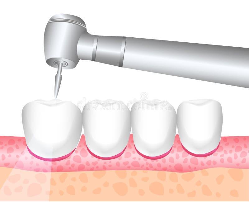 Lo strumento del trattamento di Dental del dentista, odontoiatria trivelli Il trattamento dei mal di denti, denti di perforazione illustrazione di stock