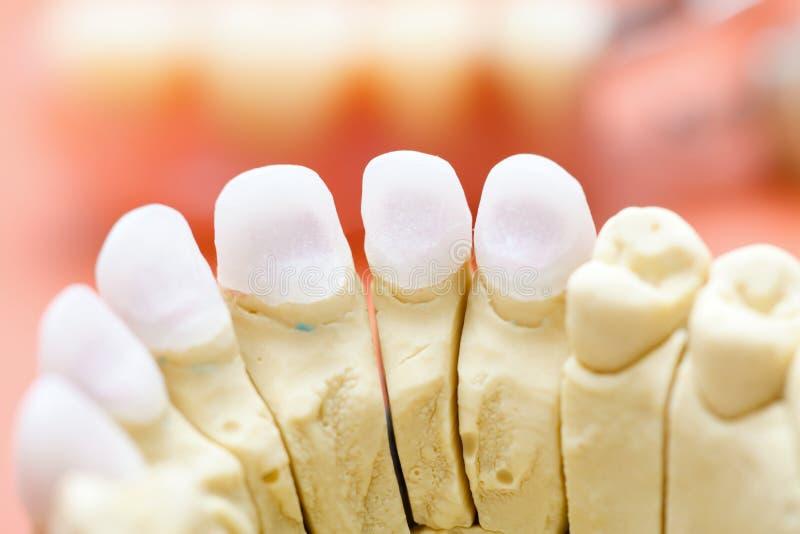 Denti di zircone immagini stock