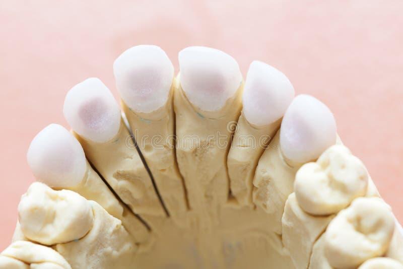Denti di zircone fotografia stock