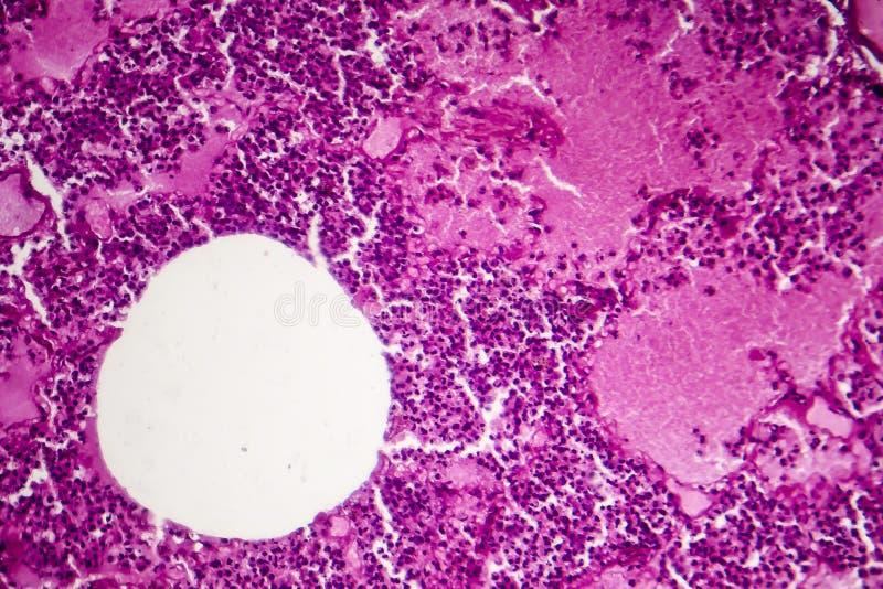 Lobaire longontsteking, hemorrhagic oedeemperiode royalty-vrije stock afbeeldingen