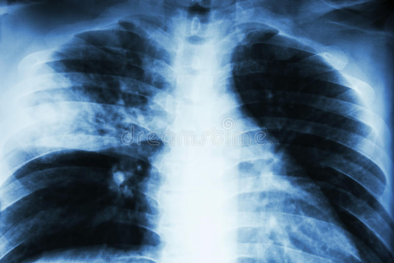 Lobar lunginflammation royaltyfri fotografi
