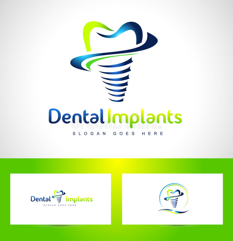Logo d'implants dentaires illustration stock