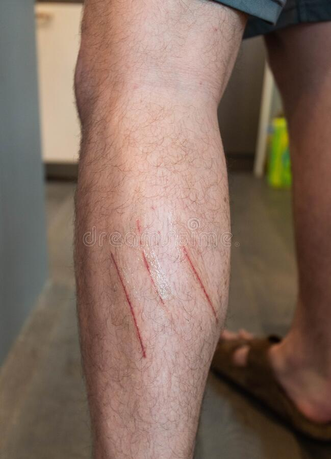 Free Long Cat Scratches On Man`s Leg Royalty Free Stock Image - 189967466