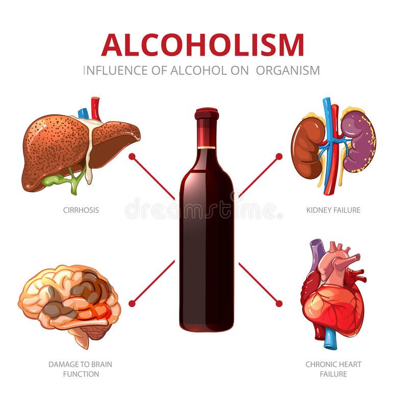 Long-term effects of alcohol. Alcoholism vector. Long-term effects of alcohol. Organism function and brain damage, failure kidney illustration. Alcoholism vector vector illustration