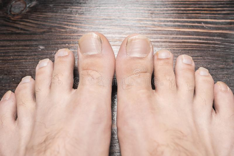 206 Long Toenails Photos Free Royalty Free Stock Photos From Dreamstime