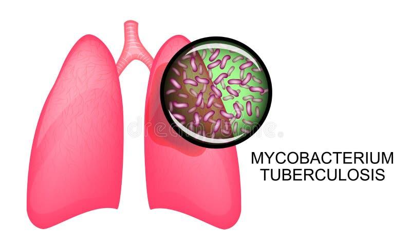 LONGEN VAN TB PATIËNTEN KOHA royalty-vrije illustratie