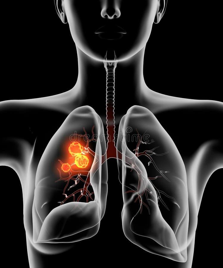 Longkanker of carcinoom, medisch illustratie 3D op zwarte achtergrond stock illustratie